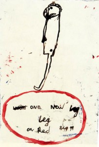 Armen Eloyan; One new leg, 1999