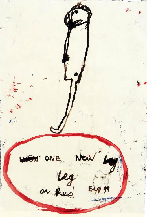 Armen Eloyan; One new leg, 1999